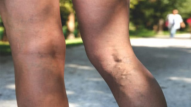 Some Treatment Options for  Saphenous Veins