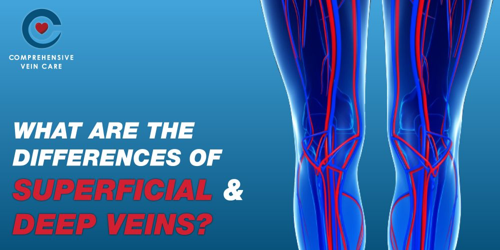 What Are The Differences of Superficial and Deep Veins?