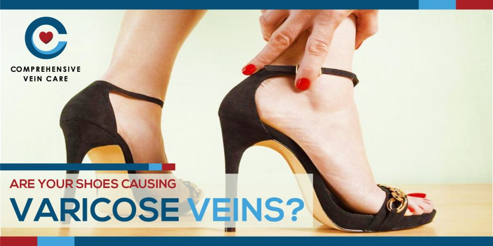 Are Your Shoes Causing Varicose Veins?