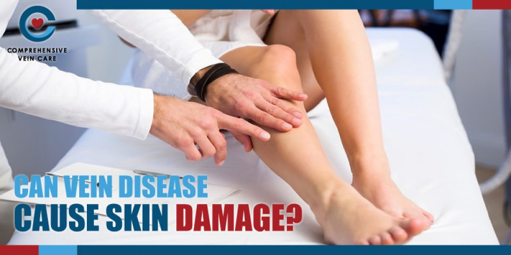 Can Vein Disease Cause Skin Damage?