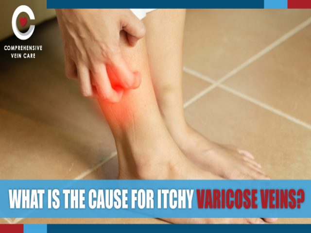 What is The Cause For Itchy Varicose Veins?