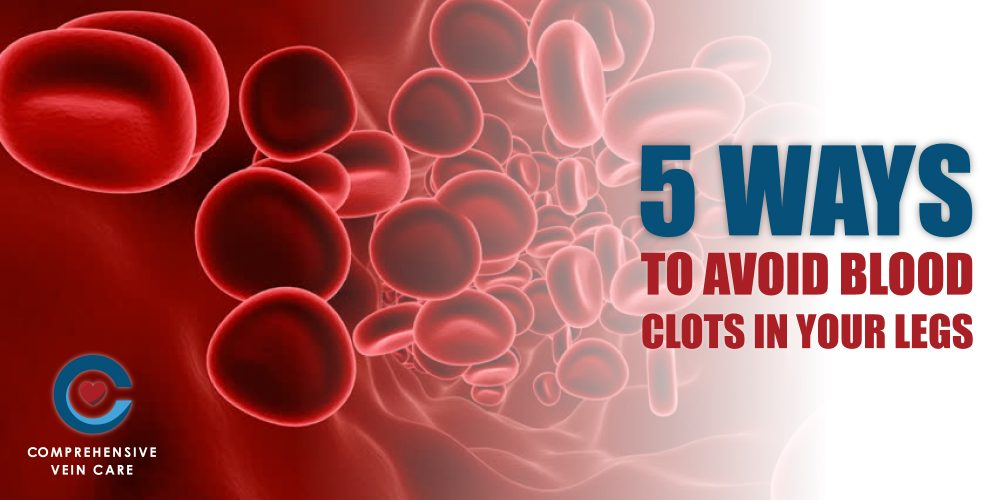 5 Ways To Avoid Blood Clots In Your Legs