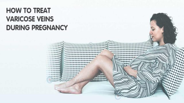 How to Treat Varicose Veins During Pregnancy