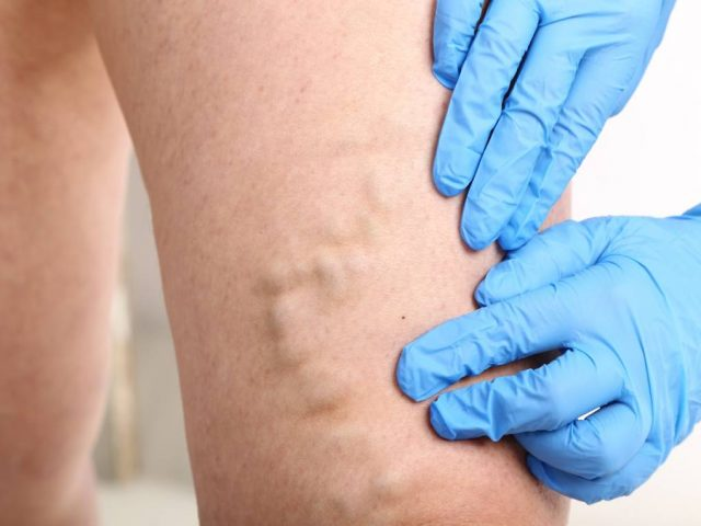 The latest methods of treating Varicose Veins