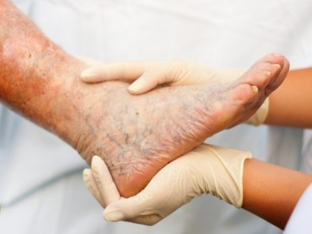 Can vein disease be prevented?