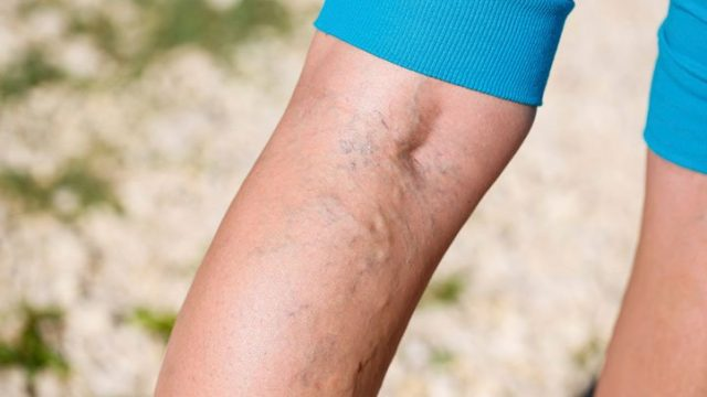 Top 10 Varicose Vein Myths-Busted!