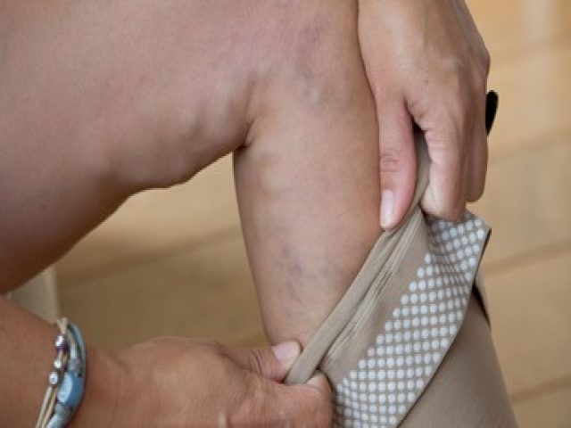 Causes and Treatment of Bulging Veins